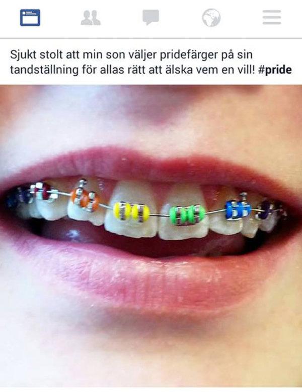 tandstallning2