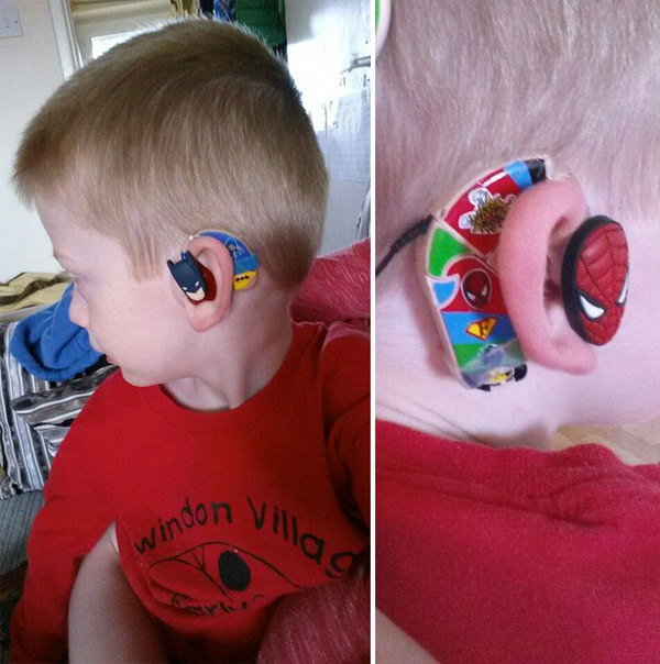 hearing-aid-decorations-kids-cochlear-implant-sarah-ivermee-lugs-4