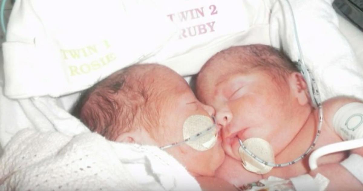 Siamesiska tvillingar gift med en man