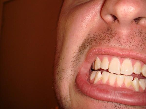blottad tandhals vad göra