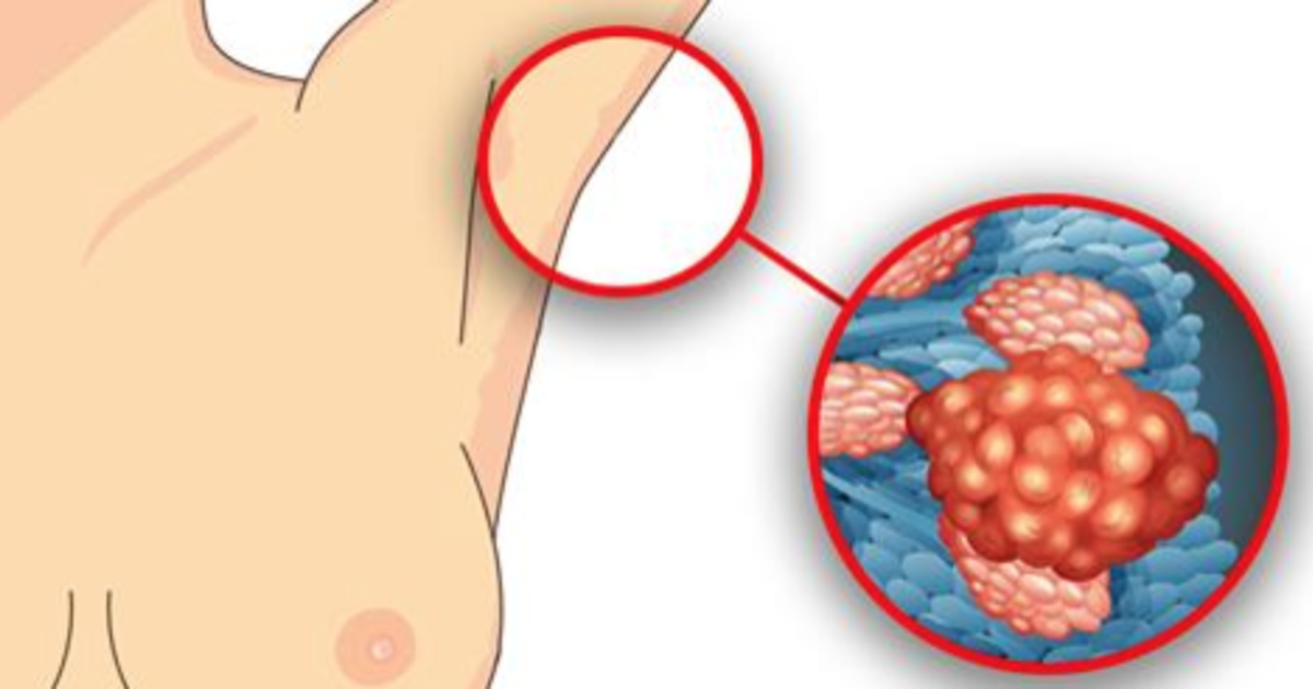 hvordan mærkes brystkræft
