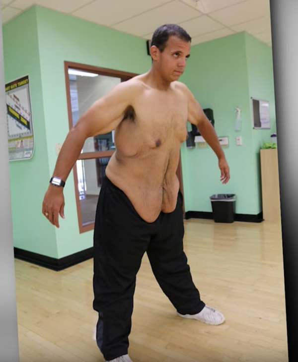 ta bort hud efter viktnedgång