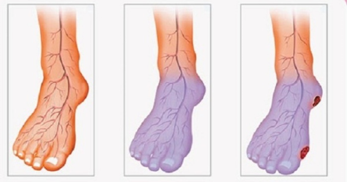 få igång blodcirkulationen i fötterna