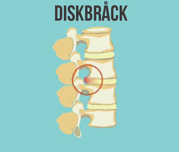 diskbråck i ryggen