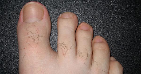 operera nageltrång själv